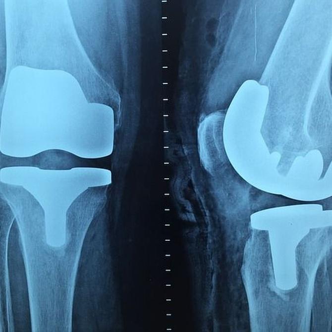 Cómo mantener las prótesis ortopédicas