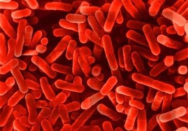Desinfección y legionella