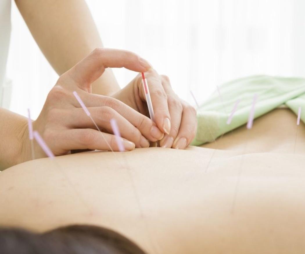 Principales aplicaciones de la acupuntura