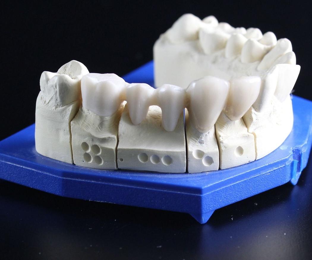 Tipos de implantes y sus materiales