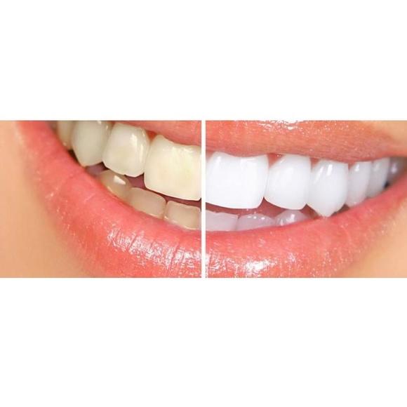 Blanqueamientos dentales: Tratamientos dentales de Clínica Dental Dres. Nuñez García