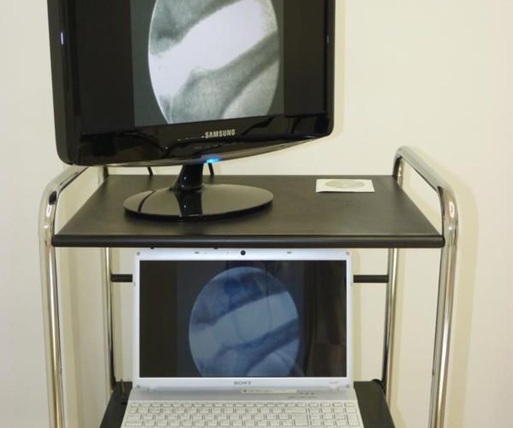 El estudio fluoroscópico