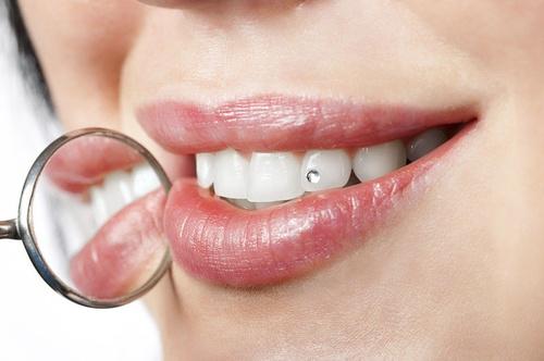 limpieza dental hortaleza
