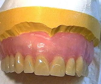 Ortodoncia invisible: Tratamientos de Clínica Dental Dr. de la Torre