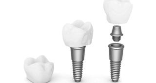 Implantes dentales, partes y materiales