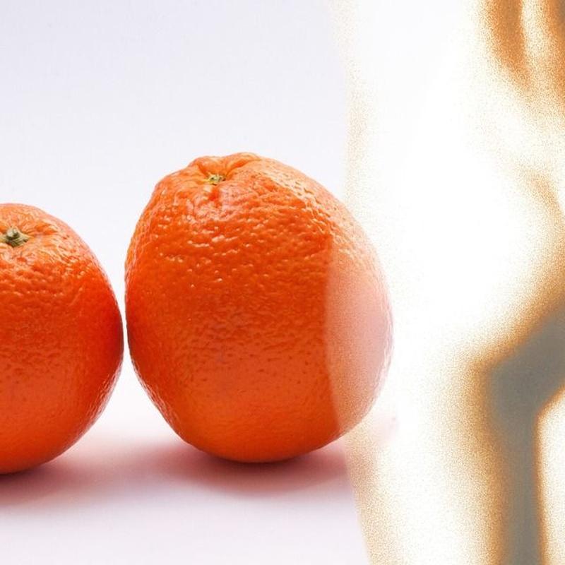 Celulitis: Tratamientos y dietas de Clínica Rubigar