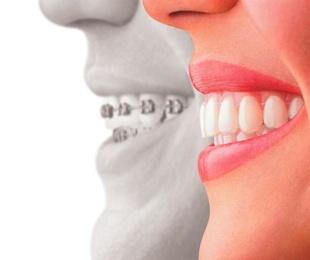 ¿Cómo funciona el tratamiento de ortodoncia invisible?