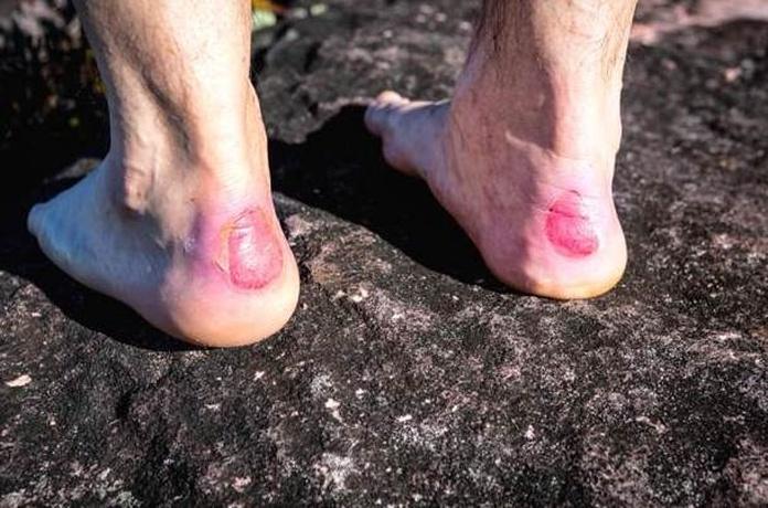 prevenir las ampollas de los pies