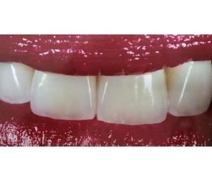 Laboratorio de prótesis dentales en Las Palmas
