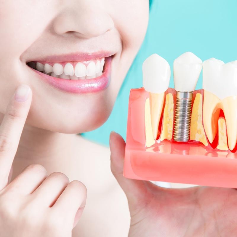 Intervención para implantes dentales: Tratamientos de Centro Médico Dental Capitol