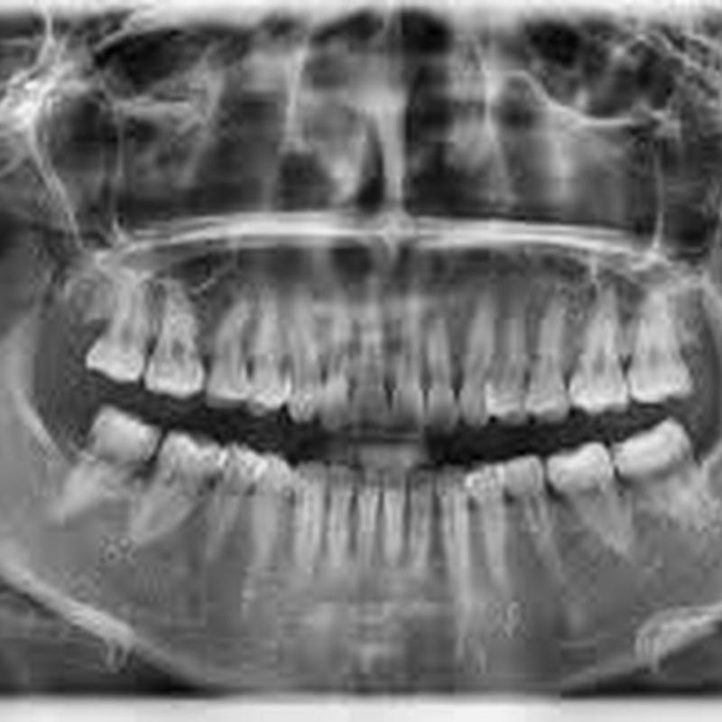 Ortopantomografía: Tratamientos de Clínica Dental Doctor Cortés FC