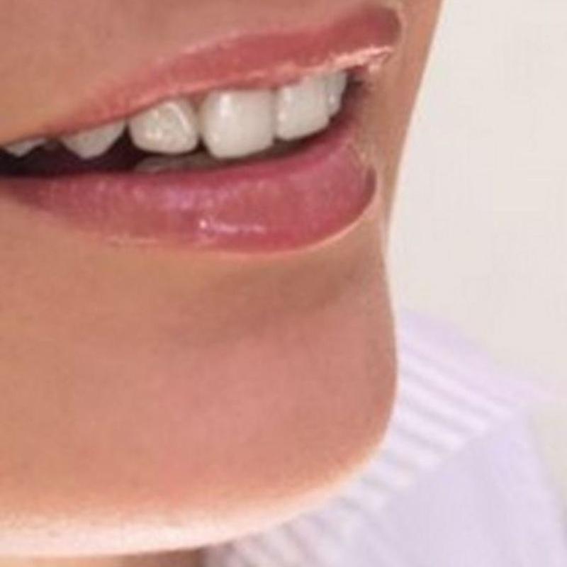Estética dental: Tratamientos de Clinica Dental Dra. Relimpio Ortega