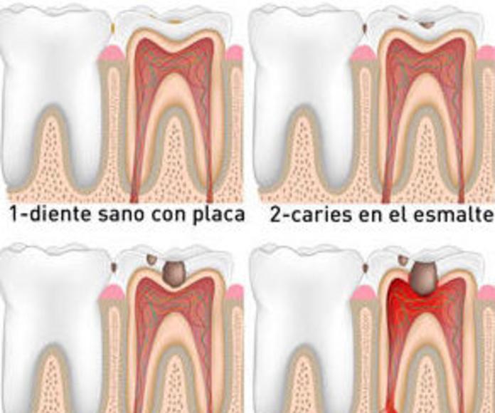 Endodoncia: Servicios de Clínica Dental Reina Victoria 23