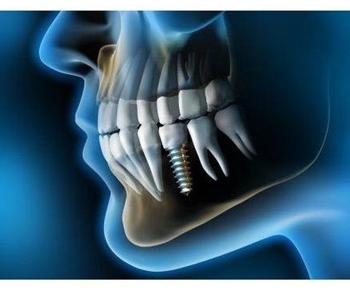 Implantes: Especialidades de Clínica Dental Jorge del Corral (cs4726)