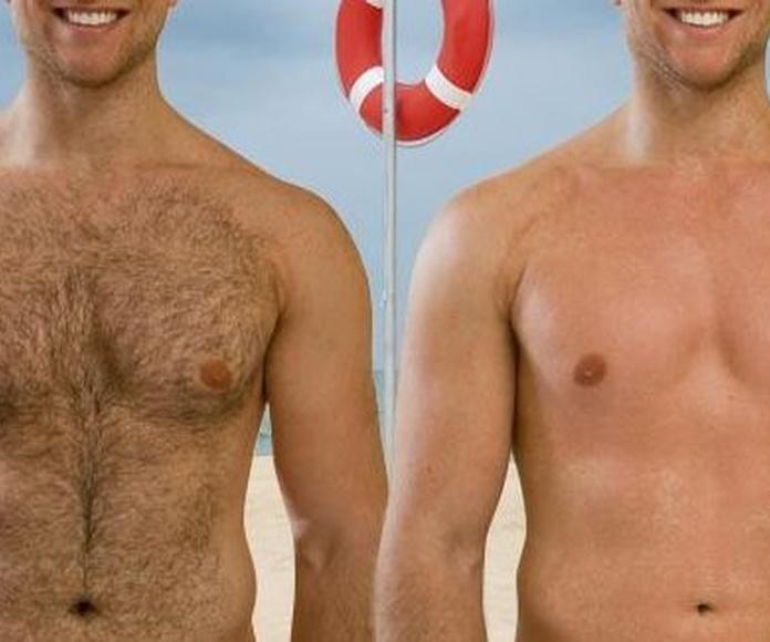Tarifas depilación cera hombre: Tratamientos de Laguna & Estetic