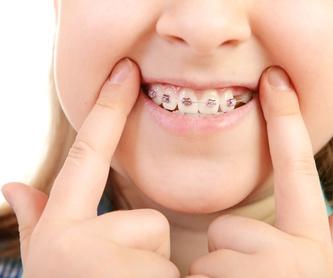 Odontología: Nuestros servicios de Clínica Dental Garraf