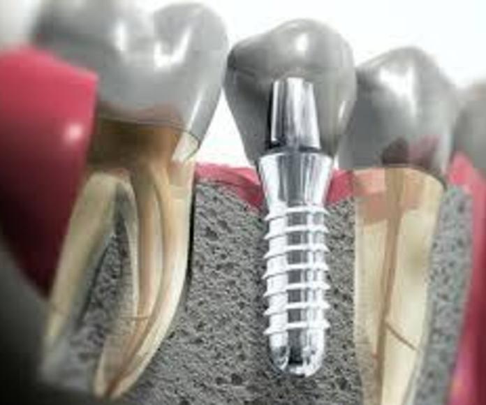 Clínica dental Gijón. Clínica Dental Santiago G. Fdez. - Nespral