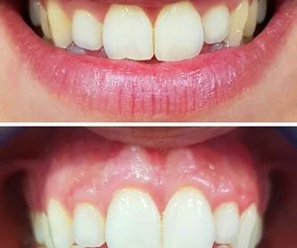 Periodoncia: Servicios de Clínica dental ulident