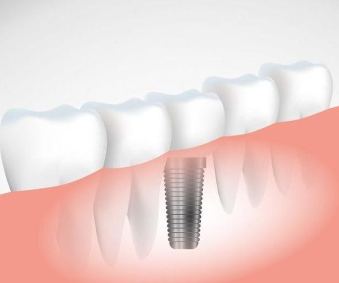 Implantes: Servicios de Clínica Dental Alodent