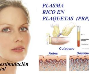 Plasma rico en plaquetas (Hidratación y Capilar)