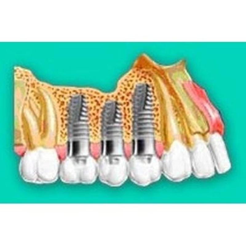 Implantología: Tratamientos de Vitaldent