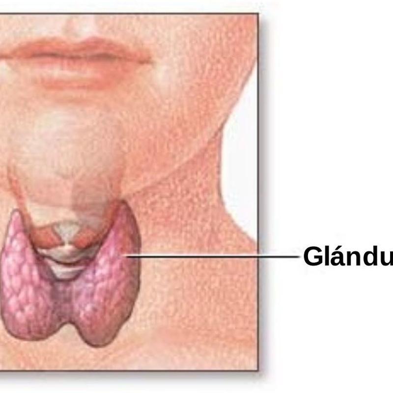 Cirugía de tiroides: Especialidades de Dra. Victoria Delgado Díaz
