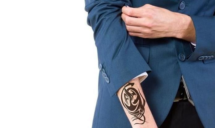 Eliminar tatuaje Madrid|Laser Avant