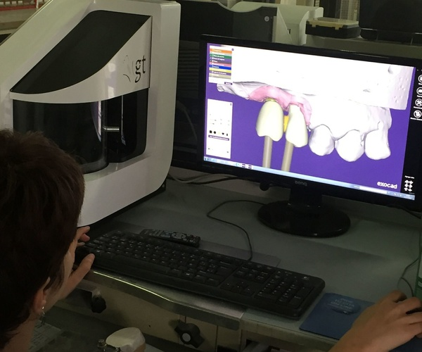 Prótesis dentales de todo tipo