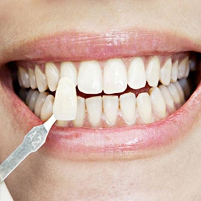Diferentes tratamientos de estética dental