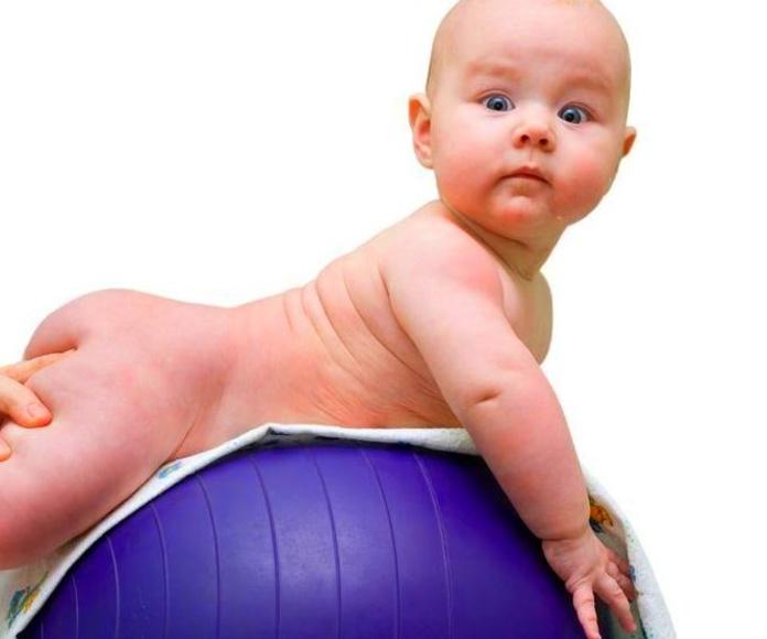 Fisioterapia neurológica. Retraso motor infantil