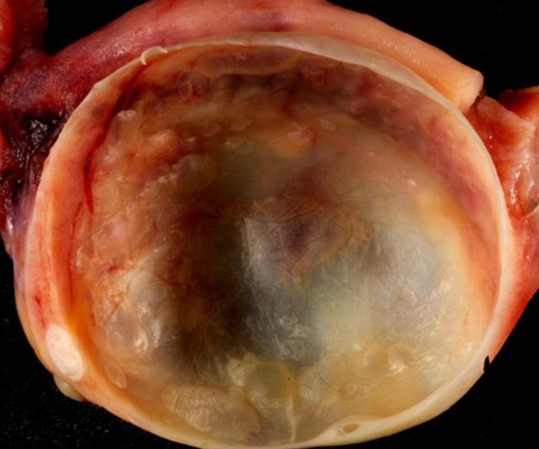 ¿Qué son los ovarios poliquísticos?