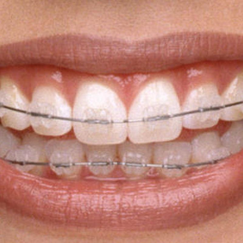clinica ortodoncia san sebastian