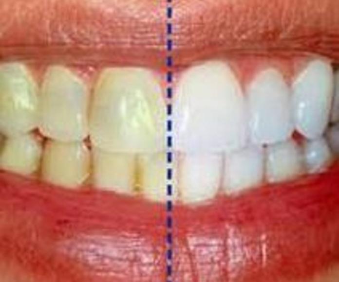 Blanqueamiento dental: Tratamientos  de Juan Luis Alonso de Dios