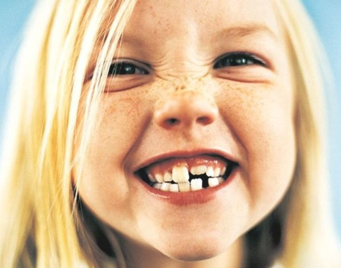 ¿Cuándo realizar la primera visita al Ortodoncista?