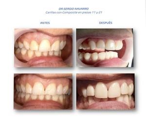 Clínicas dentales en Hospitalet de Llobregat | CDA Clínica Dental