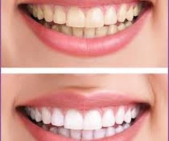 WhatsApp y redes sociales: Tratamientos de Hospident Clínica Dental