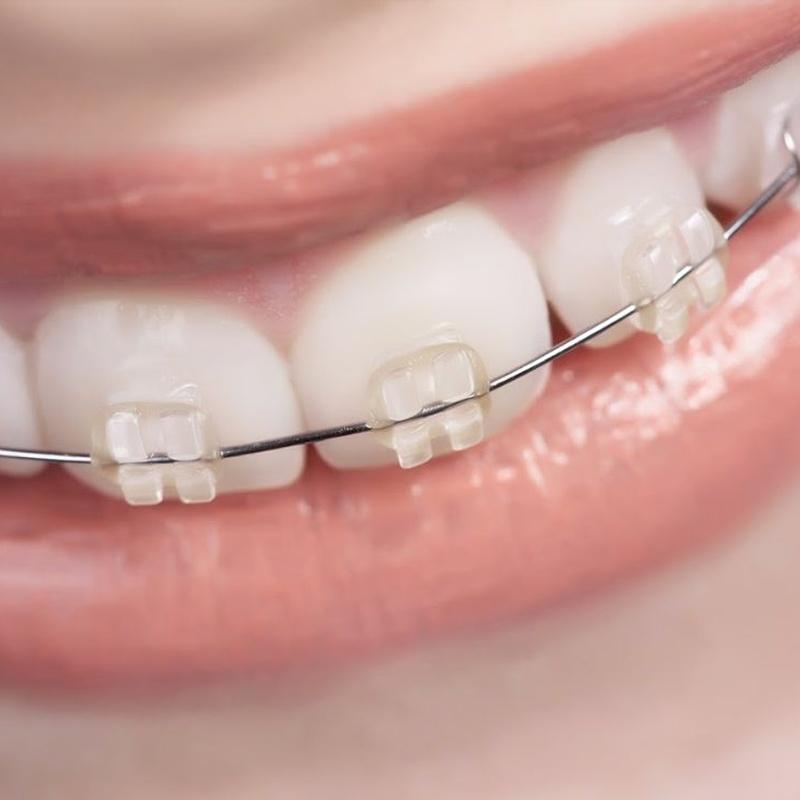 Ortodoncia: Servicios especializados de Centro Estético Dental García Marí Tenerife