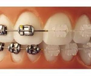 Todos los productos y servicios de Clínicas dentales: Clínica Dental Francisco Javier García Jerónimo
