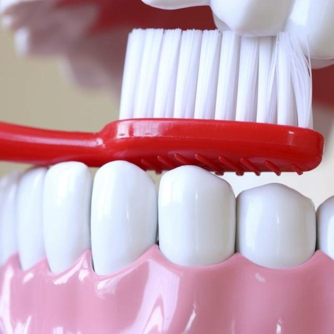 La higiene dental con implantes