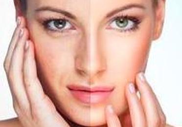 Tratamiento Carboxyterapia facial