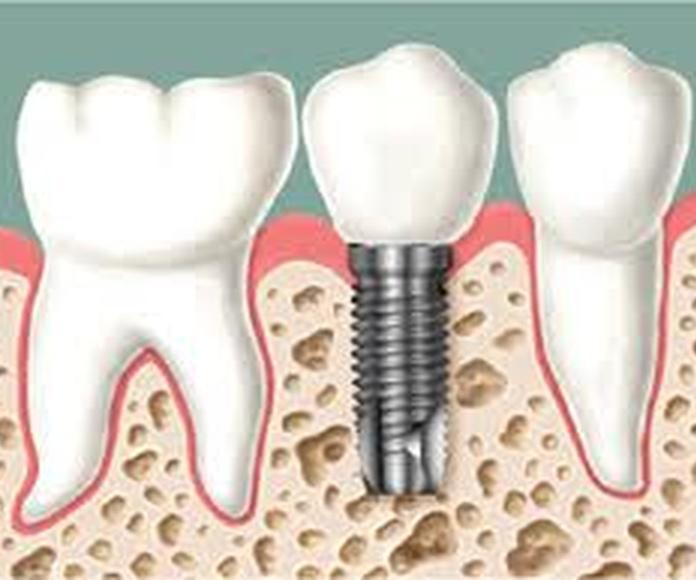 Implantología : Catálogo de Clínica Dental Cuesta y Ruisánchez, S.L.