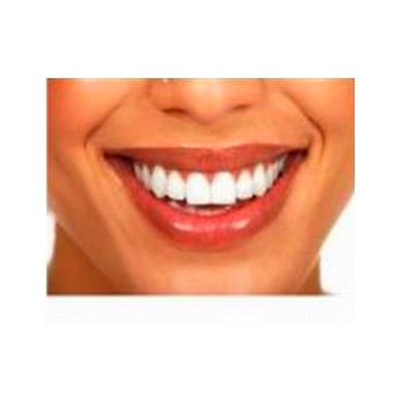 Blanqueamiento Dental: Especialidades of Clínicas Dental Máster RJ Alamillo