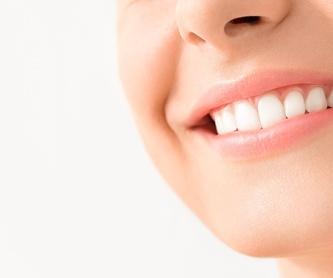 Plan dental infantil de Osakidetza (PADI): Servicios de Clínica Dental Ercilla