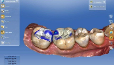 Odontologia CAD-CAM en clínica.
