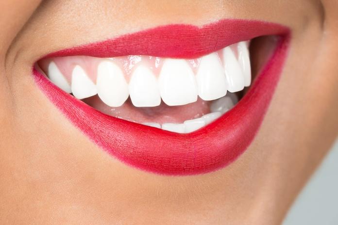 Blanqueamiento dental: Tratamientos de Clínica D'Odontología Avançada Nature Dental