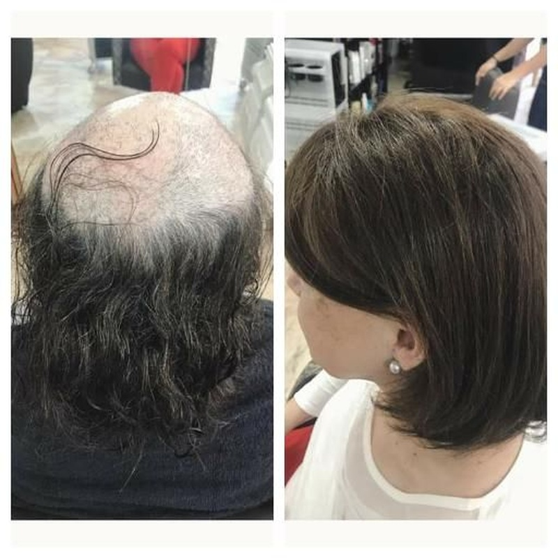 Hair prostheses: Services de Natural Hair
