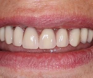 Galería de Clínicas dentales en O Milladoiro | Clínica Implanteoral Milladoiro