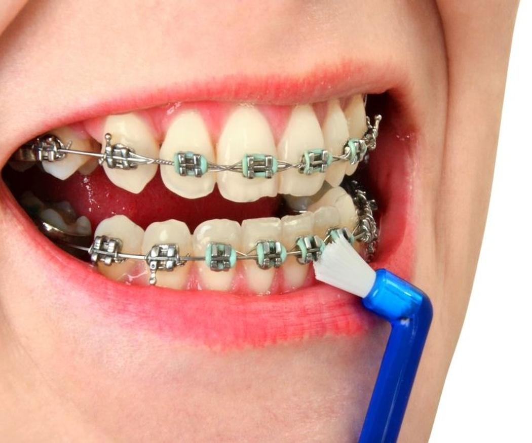 Claves de la higiene bucodental con ortodoncia