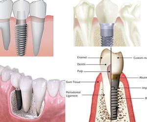 Promoción en Implante con funda, 750€