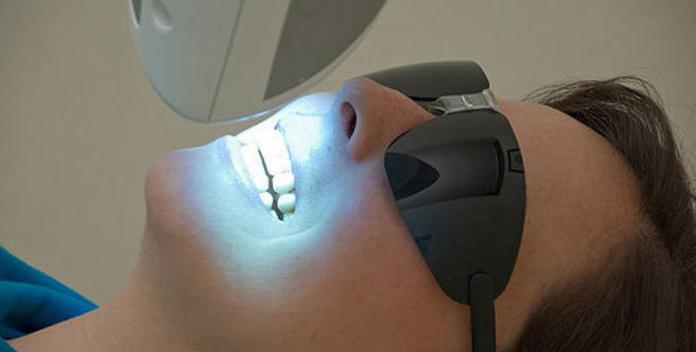 Blanqueamiento dental  : Tratamientos de Clínica Dental Center